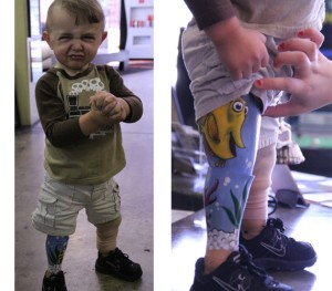 Cute One Year Old with prosthetic leg